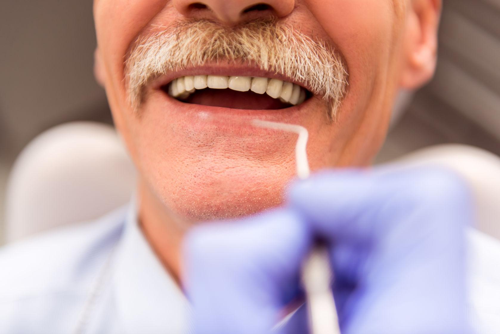 denture irritation
