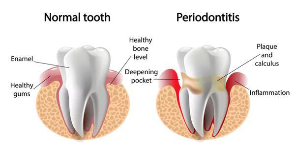 Infected teeth