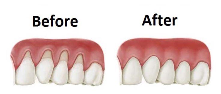 Gum regeneration