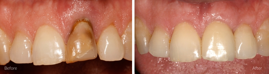 implants for single teeth