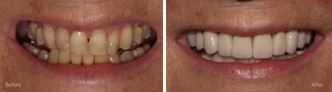 cosmetic dentistry examples