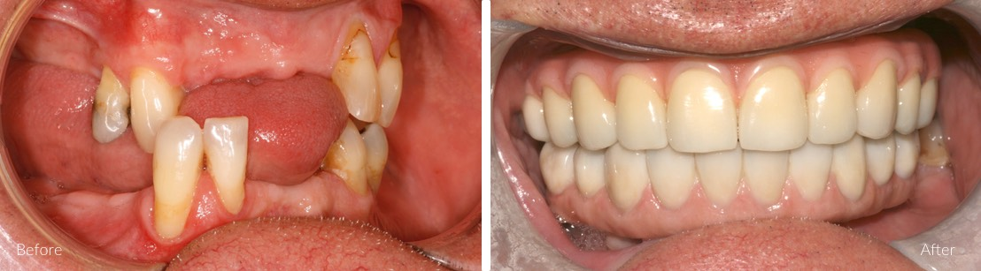 full teeth replacements